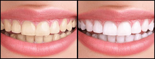 Tannblekning